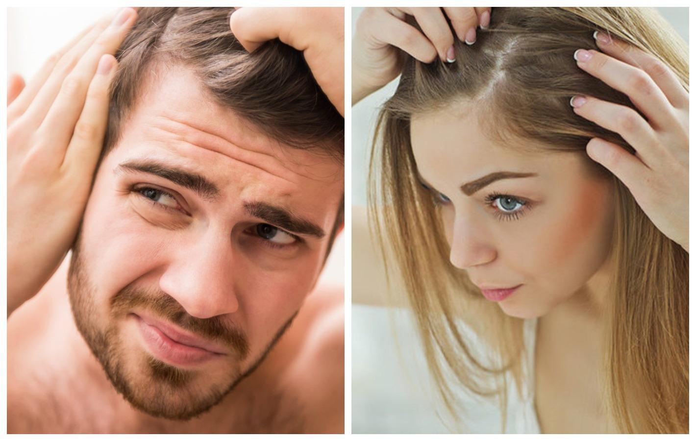 Переболевшие COVID-19 пациенты могут лишиться волос