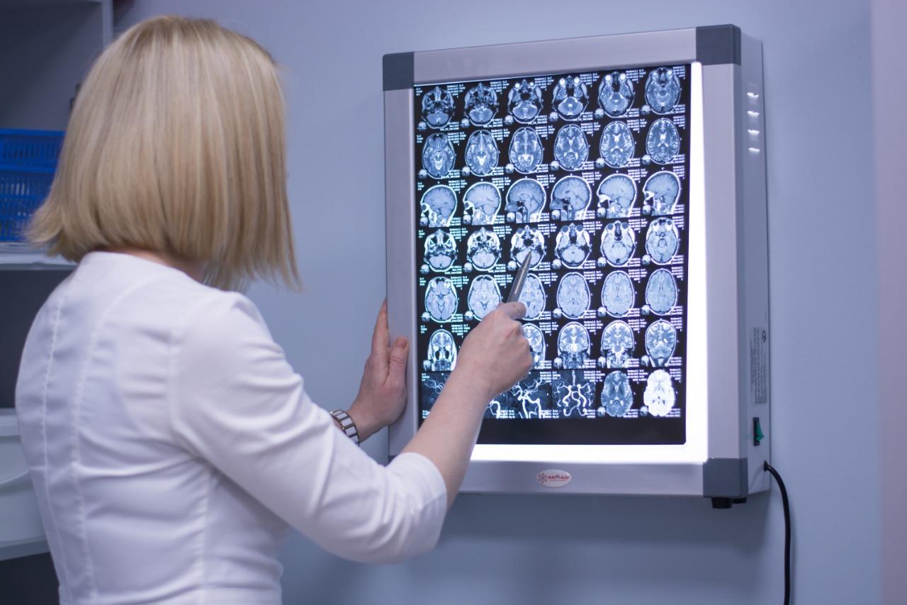 В Литве ИИ научили предсказывать симптомы развития болезни Альцгеймера у человека