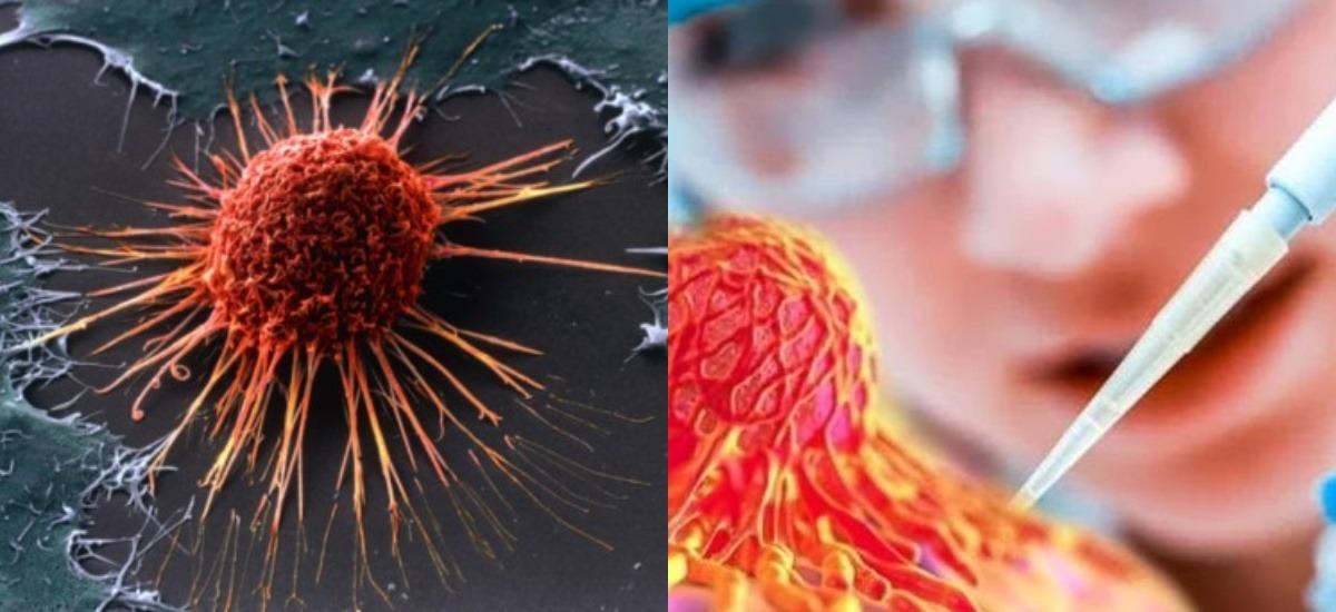 Вакцина против рака NeoVax многие годы помогала сдержать меланому