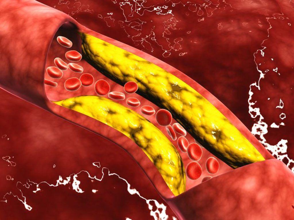 Боль в шее и руках указывает на повышенный уровень холестерина