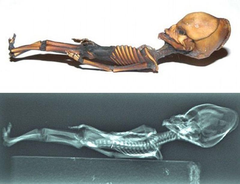 Найденный в пустыне Чили скелет инопланетянина оказался останками девочки