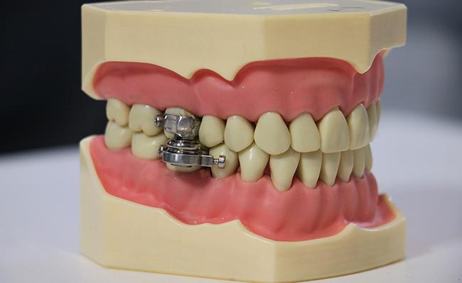 В Новой Зеландии разработали блокирующее челюсти устройство для похудения