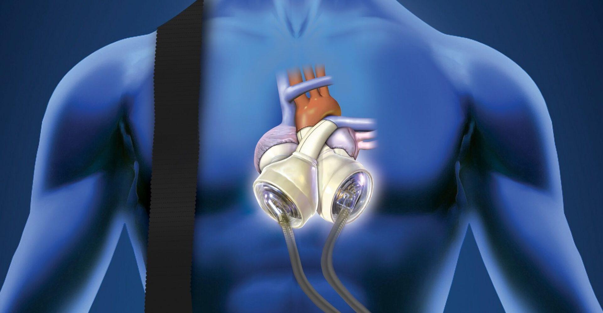 Ученые проводят клинические испытания искусственного сердца