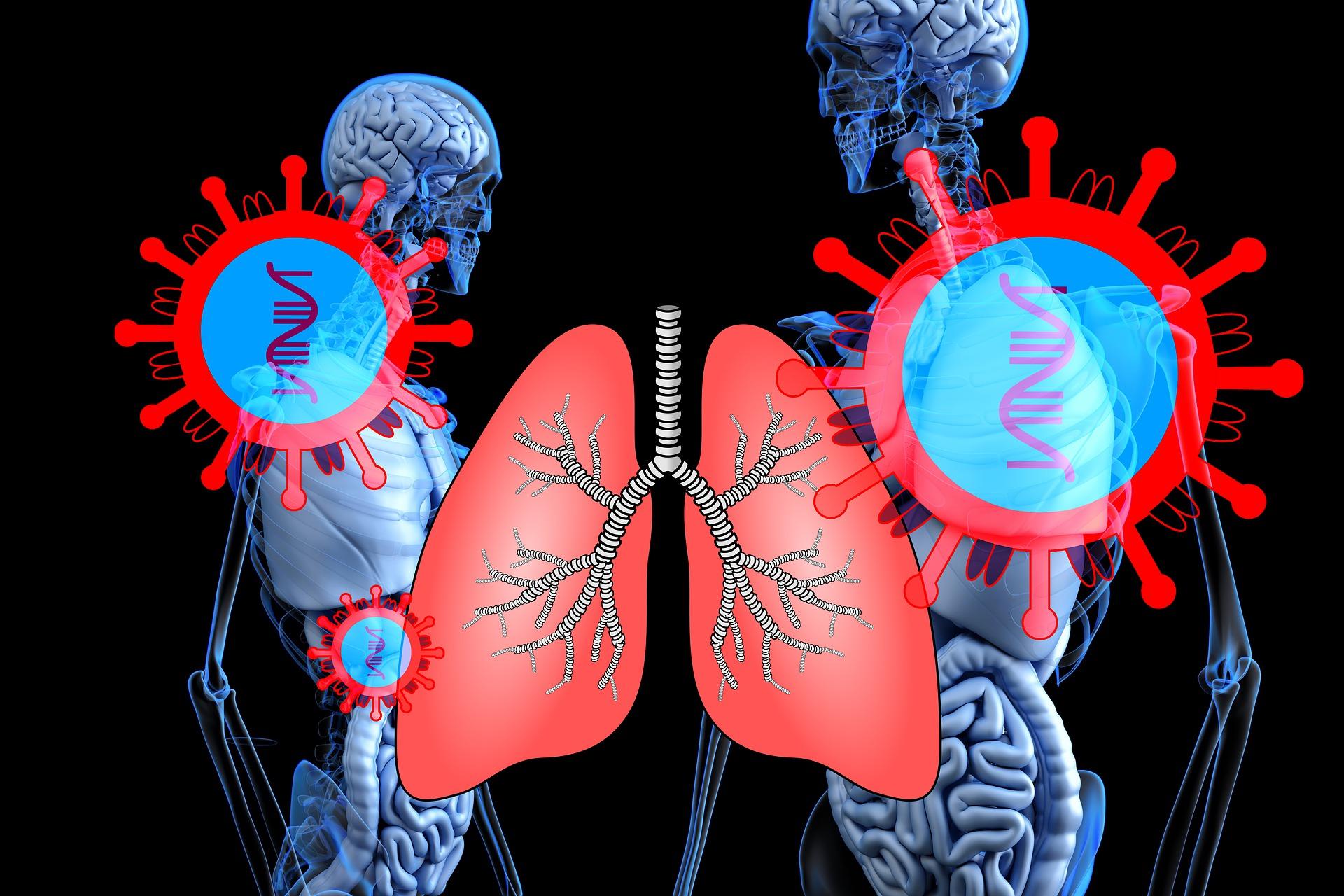 Медики назвали основные осложнения пациентов с COVID-19