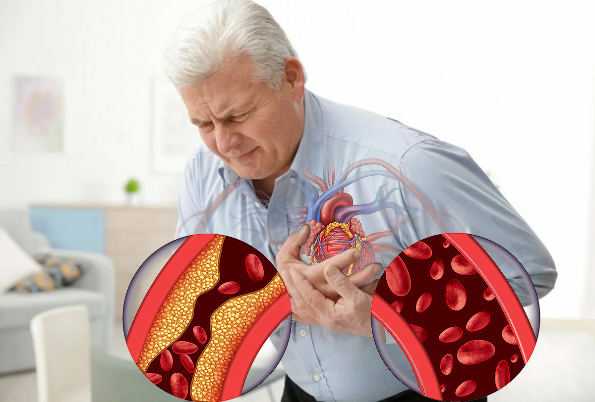 В Роспотребнадзоре предупредили о повышенном риске инфаркта и инсульта после COVID-19