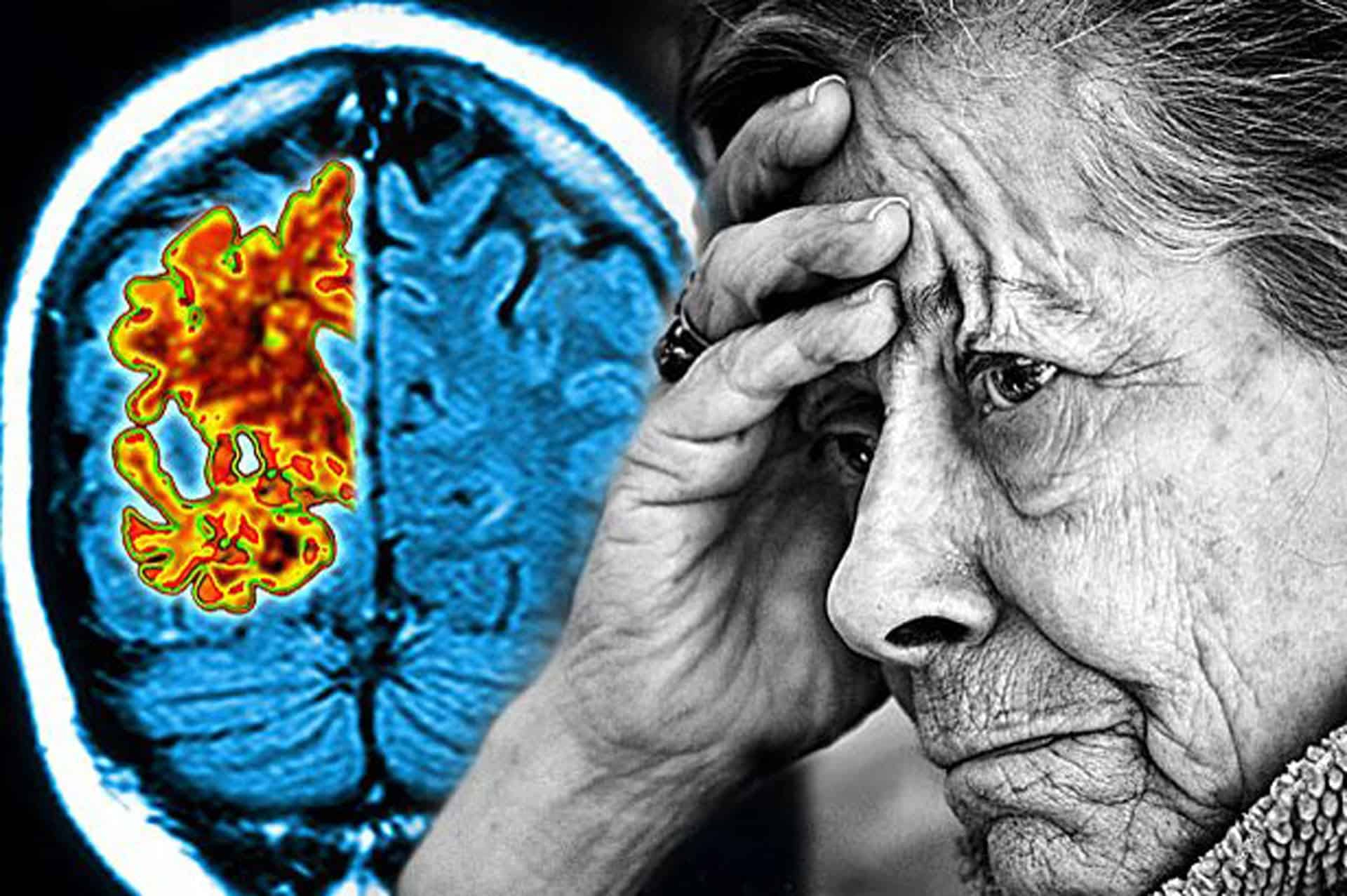 Нейросеть сможет распознавать ранние признаки болезни Альцгеймера