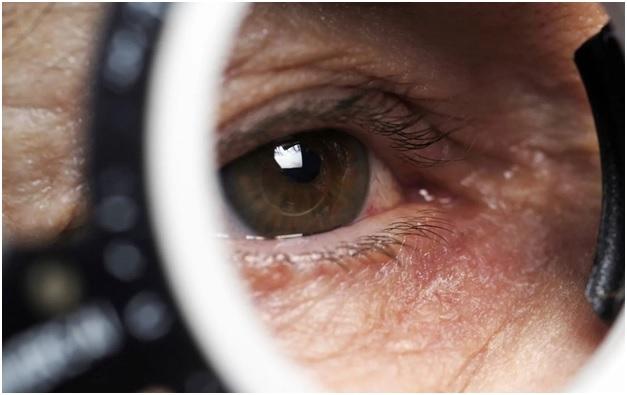 После болезни Covid-19 у жителя Йошкар-Олы упало зрение. МРТ головного мозга показало причину