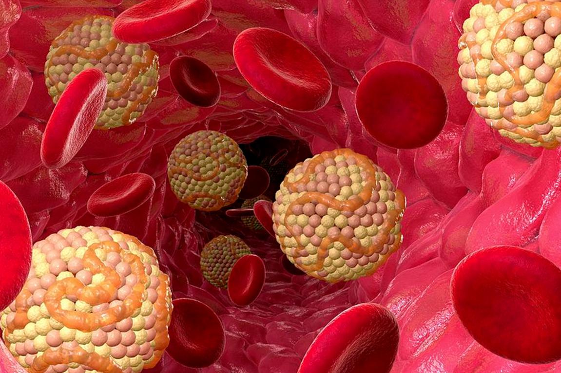 Доктор Мясников назвал повышенный холестерин причиной возрастания риска инсульта