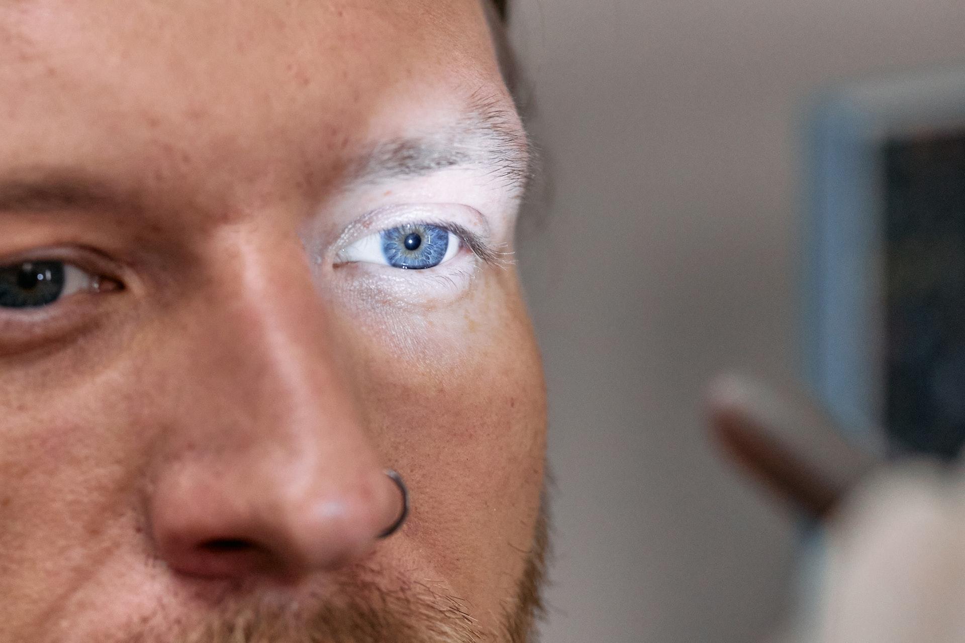 Express: Изменения в глазах могут указать на повышенный холестерин