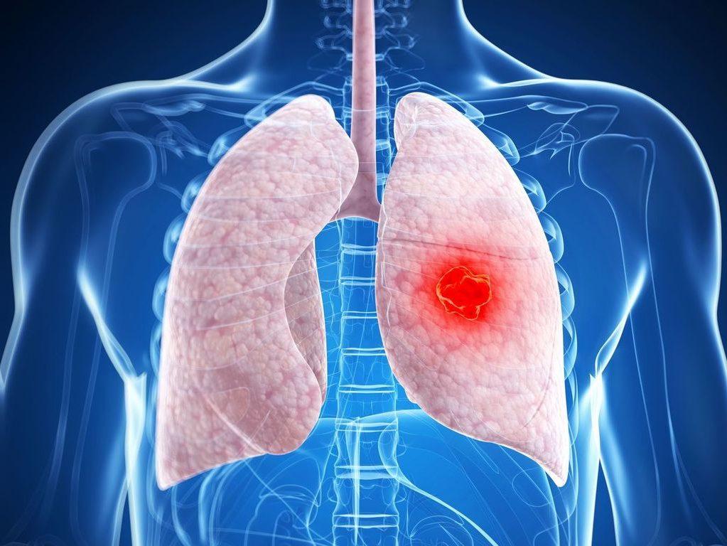NG: Выяснили в США механизм появления рака легких у никогда не куривших людей