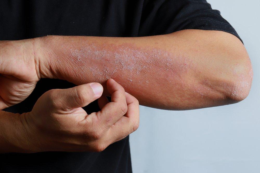 Изменение кожи может указывать на повышенный риск инсульта